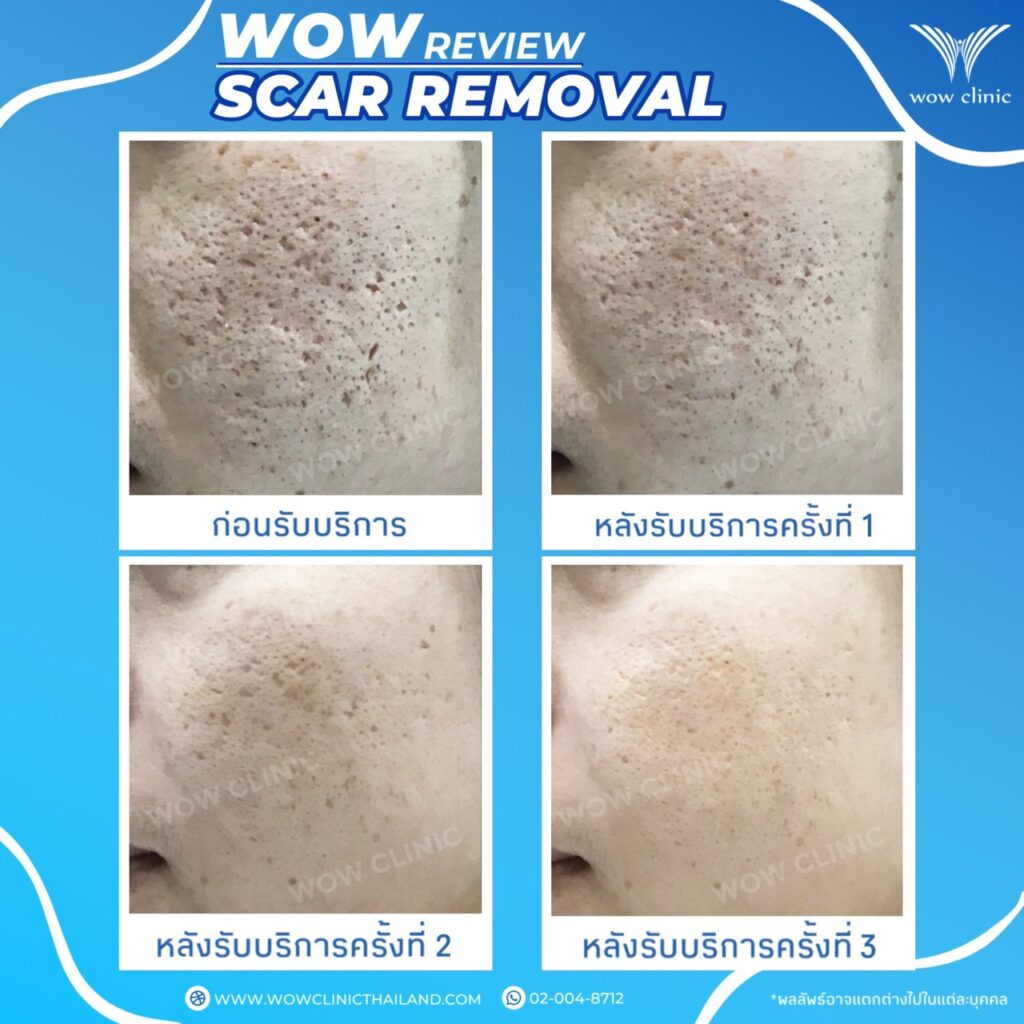 WOW SCAR REMOVAL